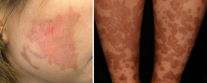 Покраснение под грудной железой: фото, чем лечить под грудными железами