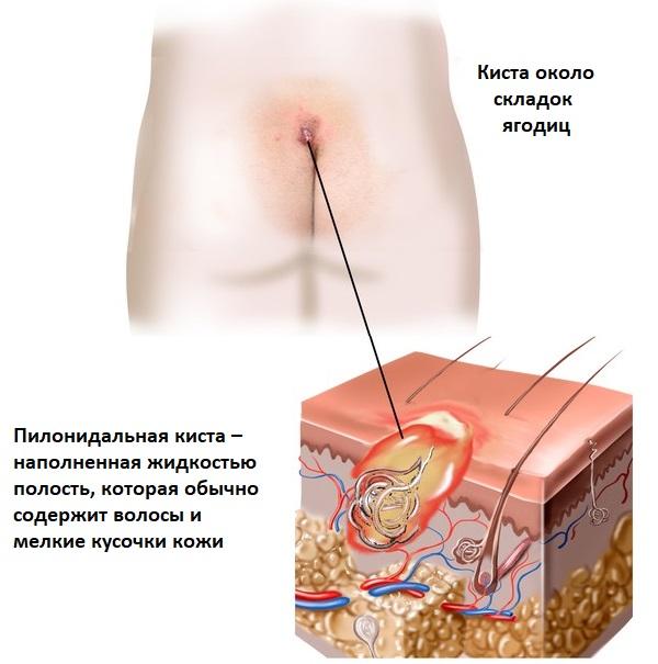 """16c659e53cf Mõnikord võite küsida, mis võib põhjustada valu alumise selgroo või  sabaääres? """"Pilonidal"""" tähendab """"juukse pesa"""", mistõttu arvavad arstid, et  see on seotud ..."""