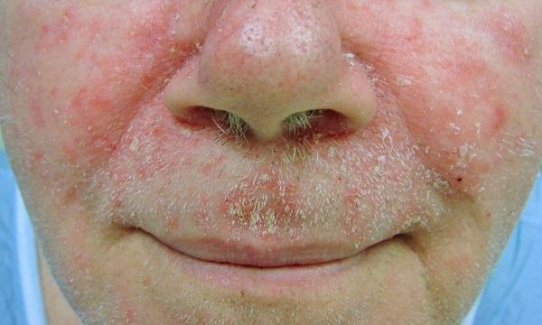 pierderea de grăsime în jurul gurii)