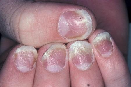 Unguent psoriazis unghii