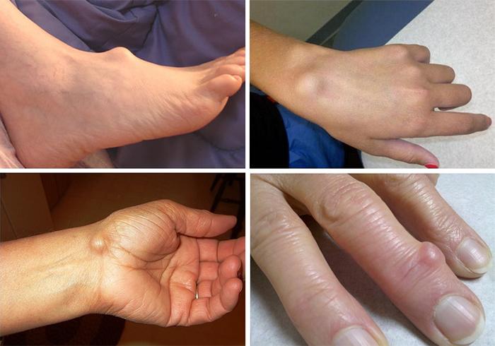 Артроз тазобедренного сустава лечение краснодар