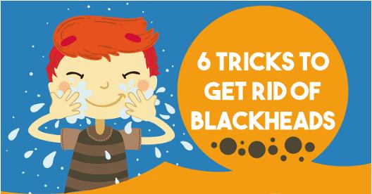 Natural blackhead remover, remove blackheads, get rid of blackheads naturally, homemade blackhead remover, Positive Health Wellness, get rid of blackheads infographic