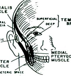 temporal space infections the temporal space is divided by the temporalis muscle into a superficial component enclosed by the masseter muscle and a deep  [ 1465 x 996 Pixel ]