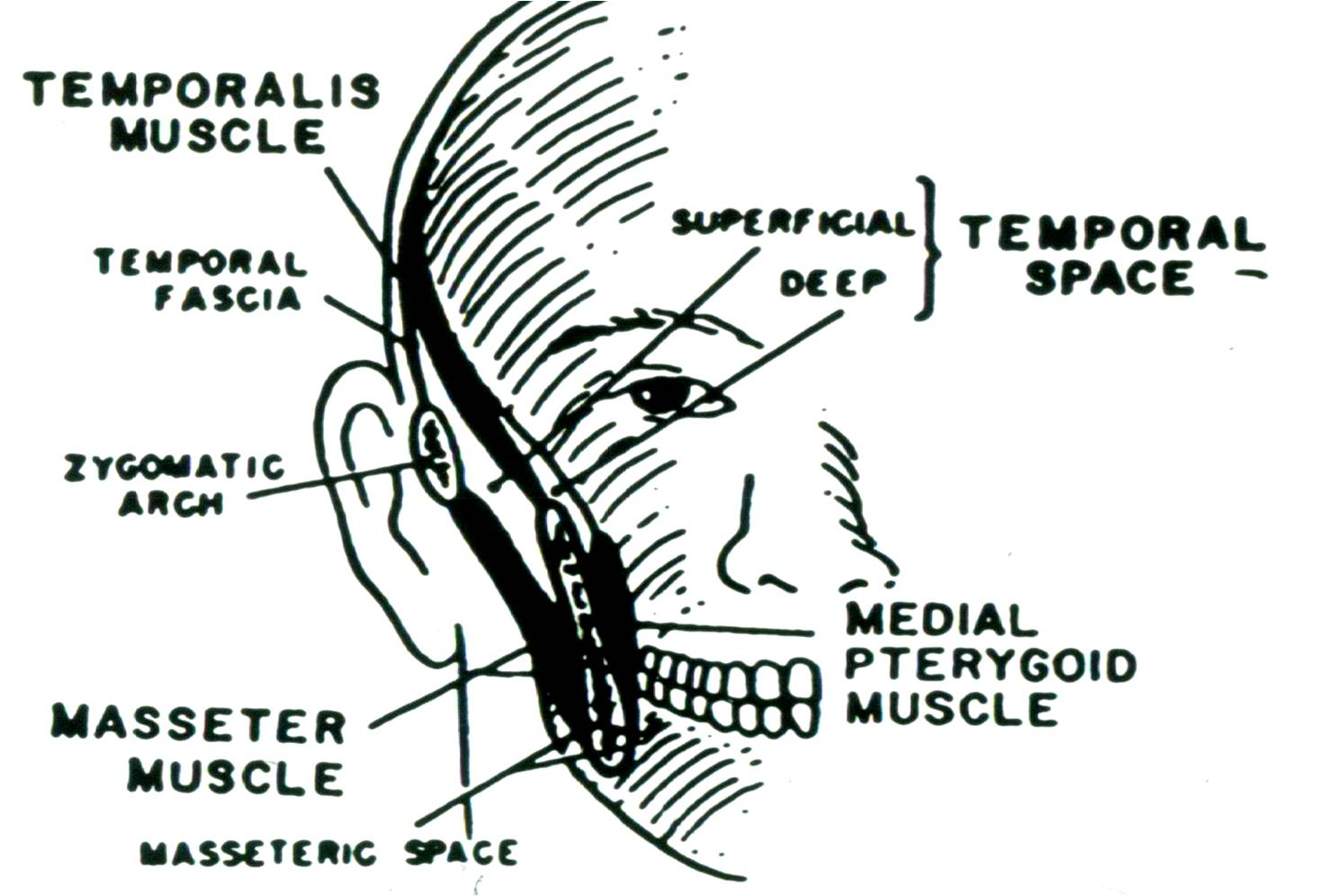 hight resolution of temporal space infections the temporal space is divided by the temporalis muscle into a superficial component enclosed by the masseter muscle and a deep