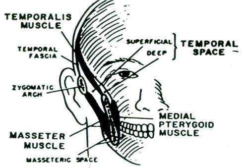 small resolution of temporal space infections the temporal space is divided by the temporalis muscle into a superficial component enclosed by the masseter muscle and a deep