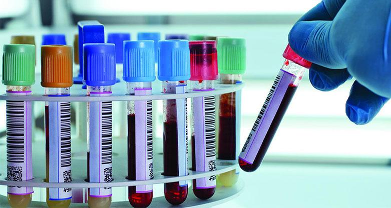 οι εξετάσεις όλες στα μικροβιολογικά των νοσοκομείων
