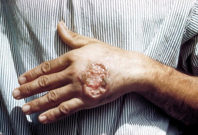 Λεϊσμανίαση: προληπτική ενημέρωση για την διασφάλιση της δημόσιας υγείας
