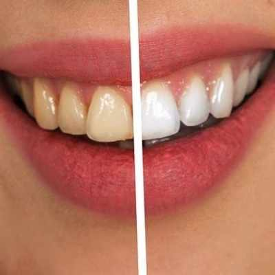 Teeth Whitening Kits Reviews