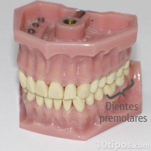 Plastik protez modeli
