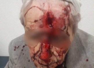 gewonde vrouw