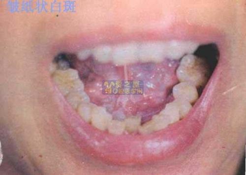 口腔粘膜白斑如何治療或處理?-杜文華醫生博客-搜狐博客