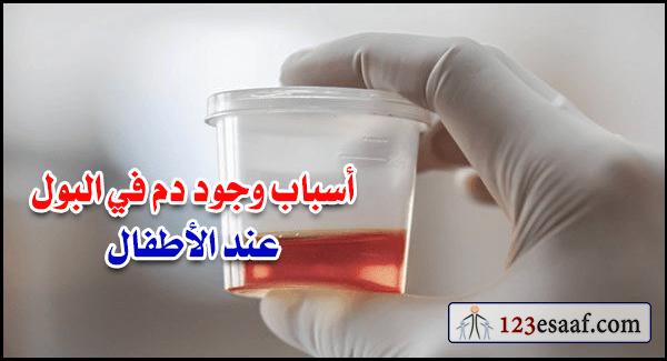 أسباب وجود دم في البول عند الأطفال