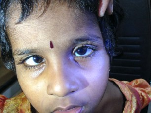 This photo shows a 3 year old child with untreated infantile esotropia.