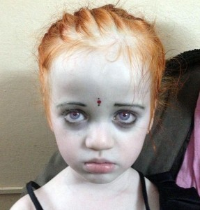 Photograph of child with oculocutaneous albinism and nystagmus from Goutami Eye Hospital, Rajahmundry, India. To try and prevent social criticism and isolation these children have their hair, eyebrows and eyelashes dyed red to disguise their hypopigmented skin, hair and eyes.