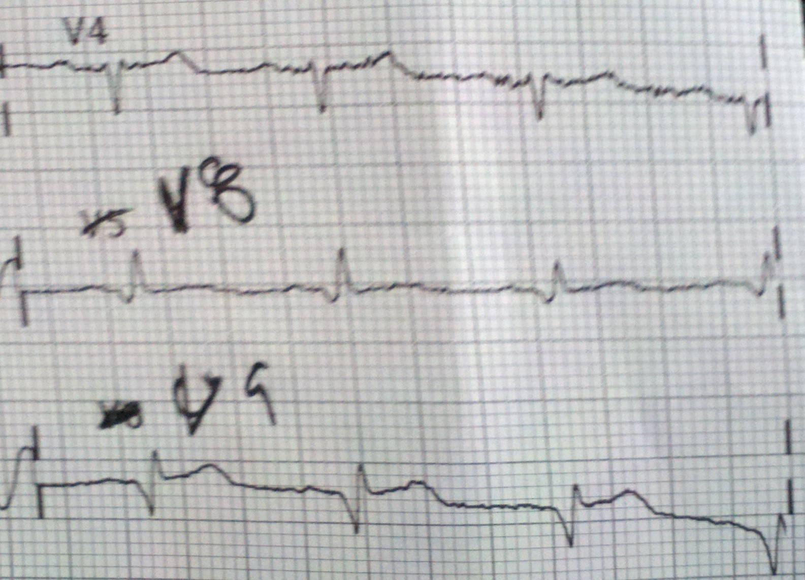 4 Days Of Chest Pain