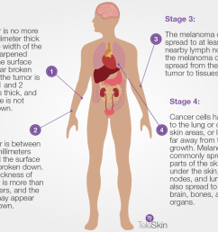 the abcde criteria represent a commonly used guide for monitor your skin for early signs of melanoma you can read more about abcde here [ 1200 x 900 Pixel ]