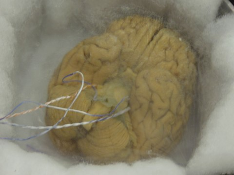 Vitrified brain of Alcor patient A-2077