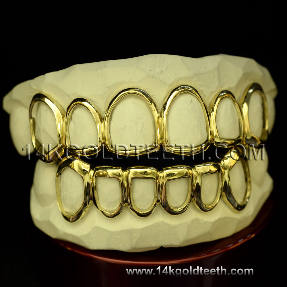 Top & Bottom Yellow Gold Teeth Grillz - TBY 30016