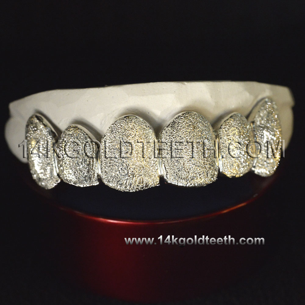 Top White Gold Teeth Grillz - TW 10202