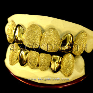 Diamond Dust Yellow Gold Teeth Grillz - DD 90009