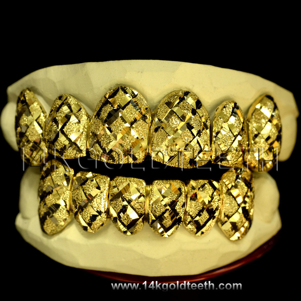 Top & Bottom Yellow Gold Teeth Grillz - TBY 30011