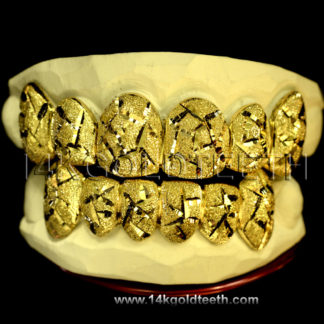 Top & Bottom Yellow Gold Teeth Grillz - TBY 30003
