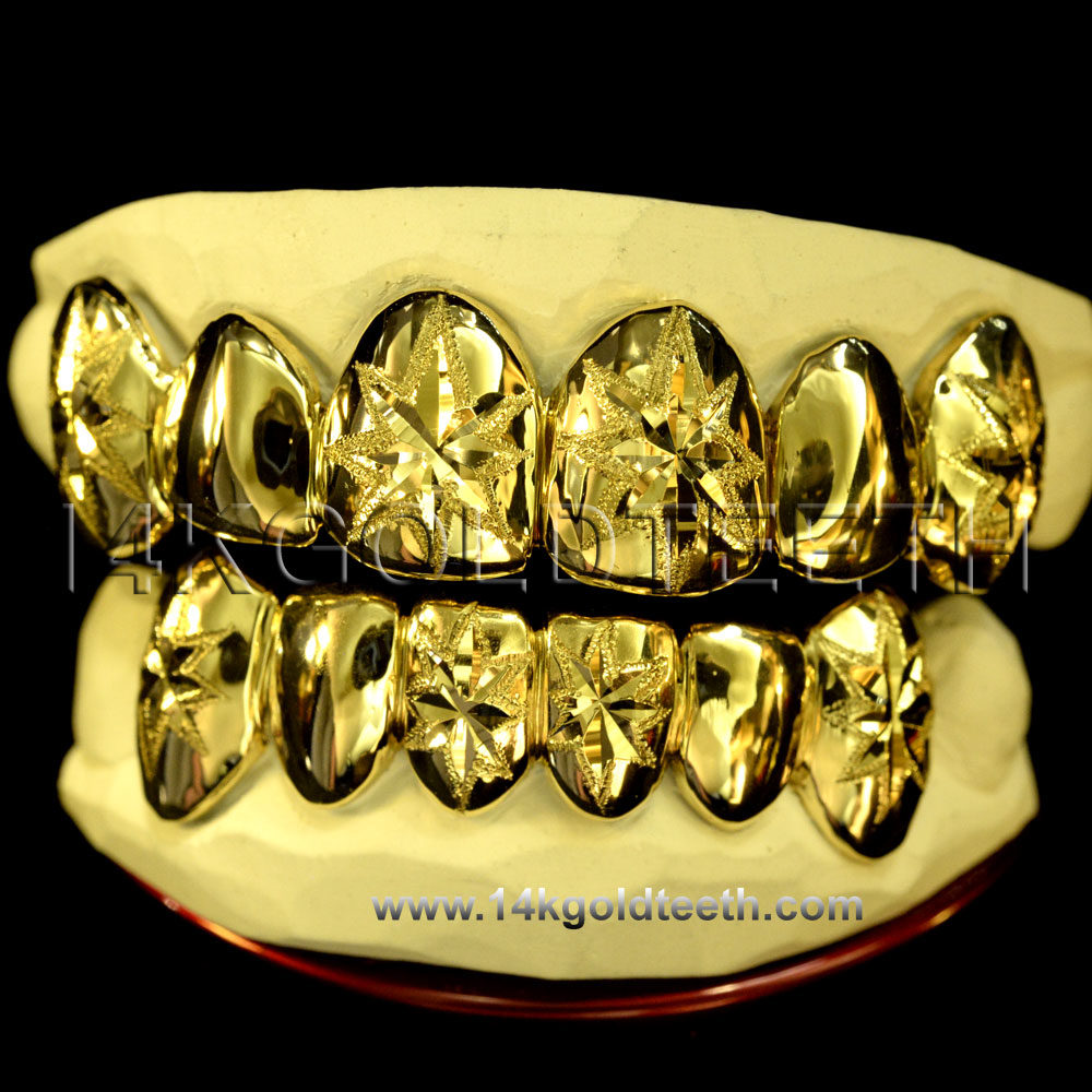 Top & Bottom Yellow Gold Teeth Grillz - TBY 30019