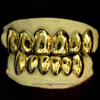 Top & Bottom Yellow Gold Teeth Grillz - TBY 30014