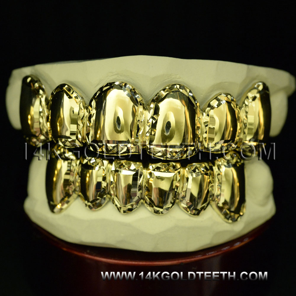 Top & Bottom Yellow Gold Teeth Grillz - TBY 30020