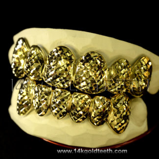 Top & Bottom Yellow Gold Teeth Grillz - TBY 30004