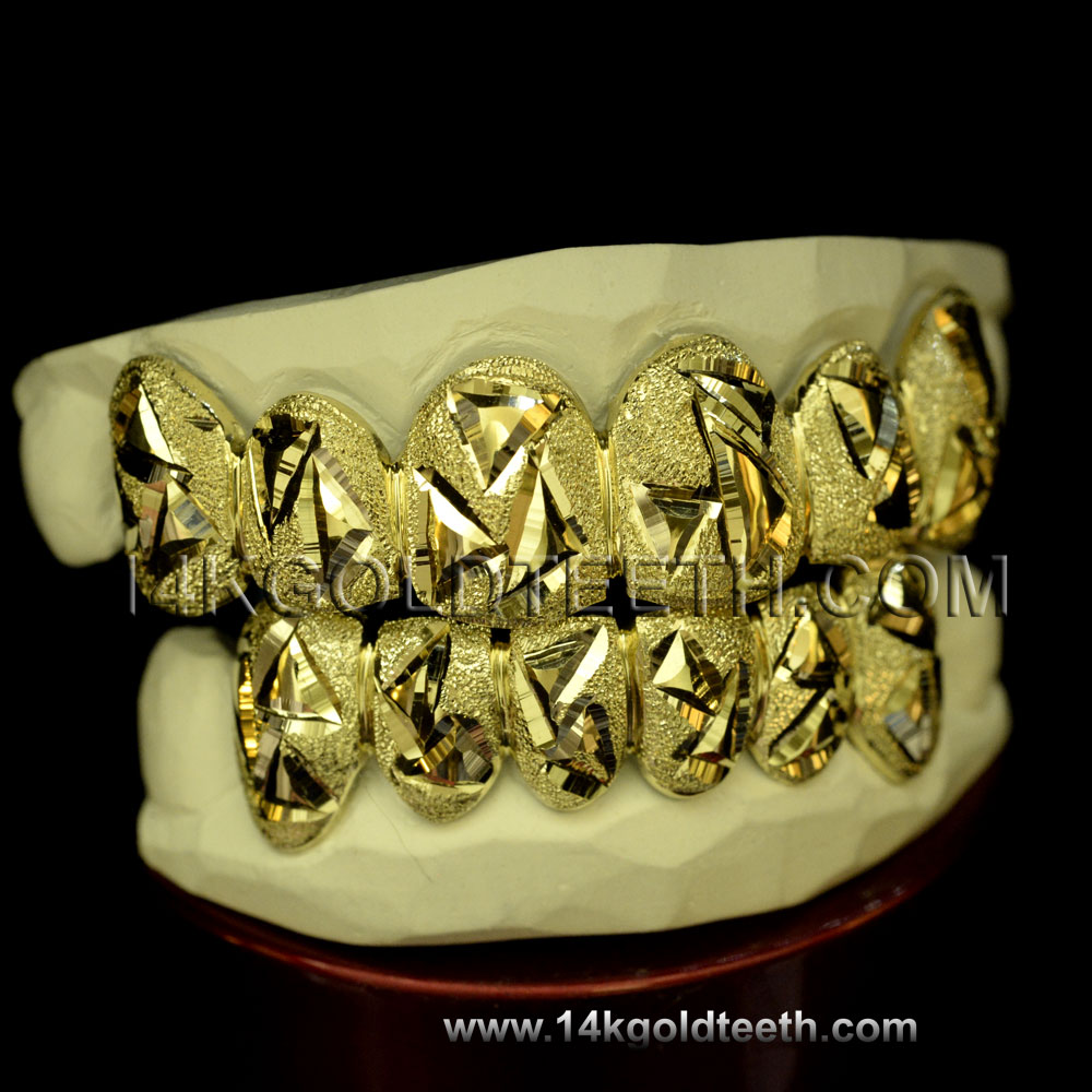 Top & Bottom Yellow Gold Teeth Grillz - TBY 30001