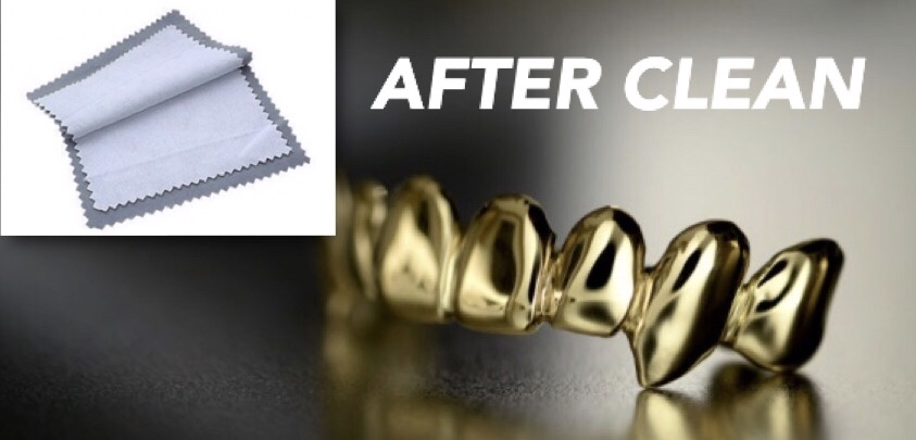 Cleaning gold teeth with cloth
