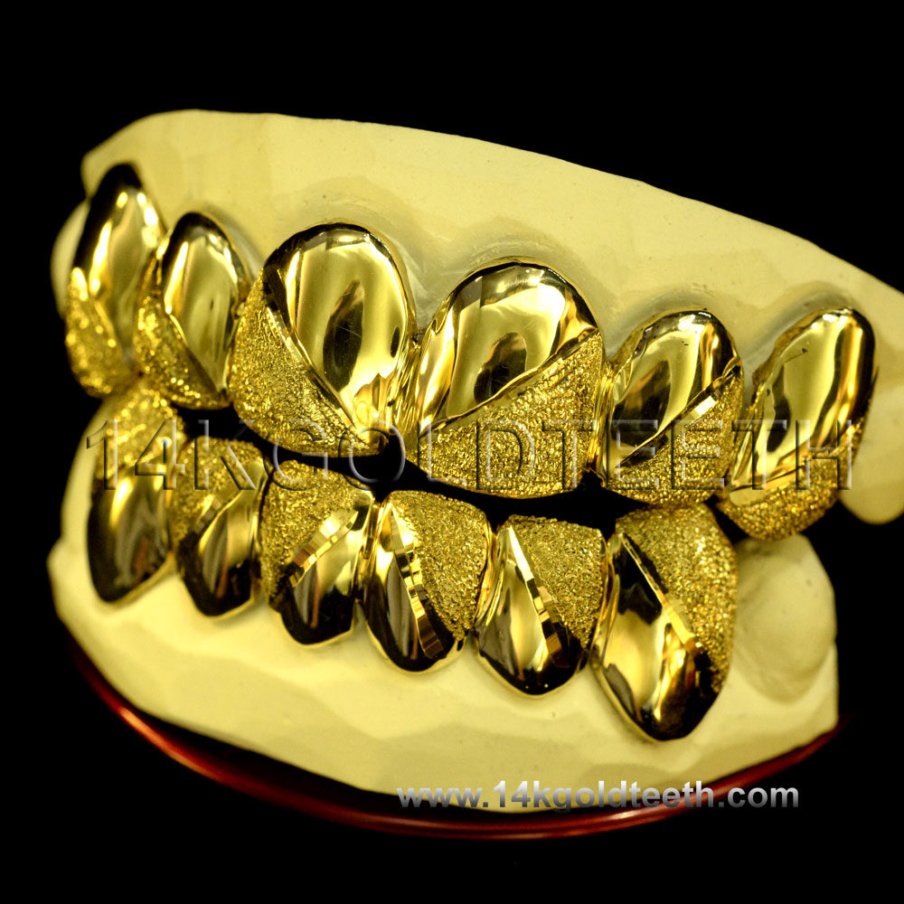 Top & Bottom Yellow Gold Teeth Grillz - TBY 30007