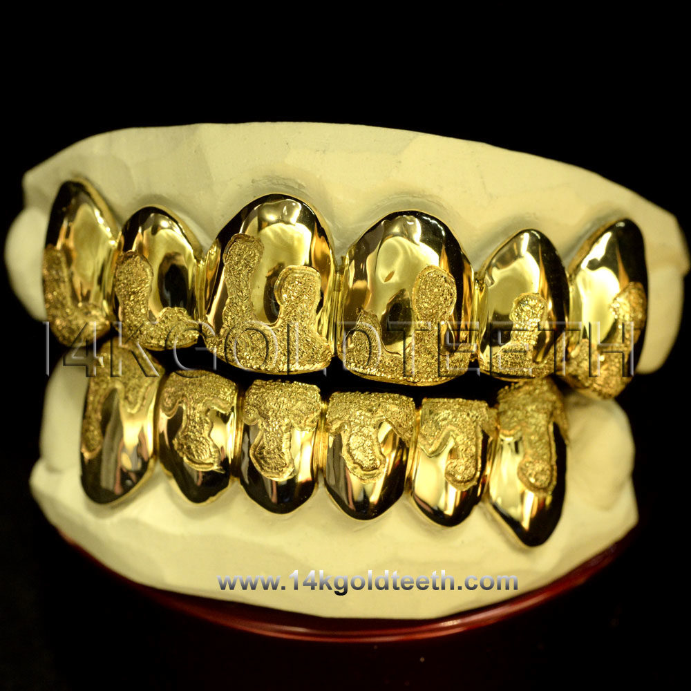 Silver Diamond Dust Drip Grillz with 18k Yellow Gold Plated - SP 107
