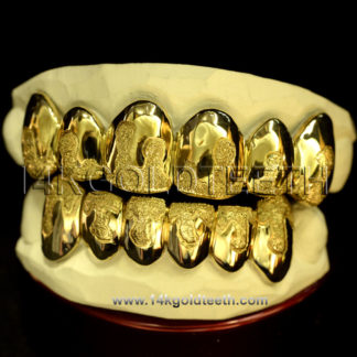 Top & Bottom Yellow Gold Teeth Grillz - TBY 30002
