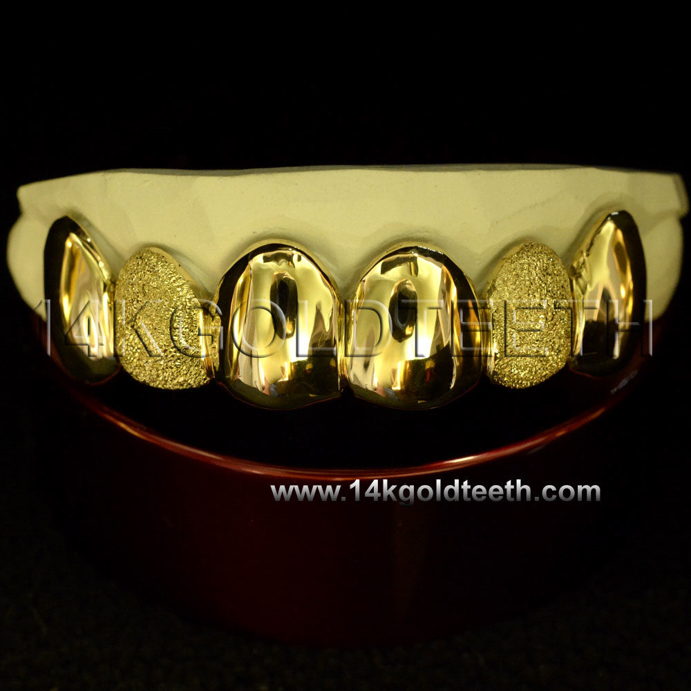 Diamond Dust Yellow Gold Teeth Grillz - DD 90022