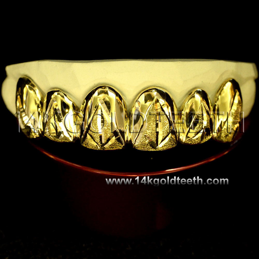 Diamond Dust Yellow Gold Teeth Grillz - DD 90014