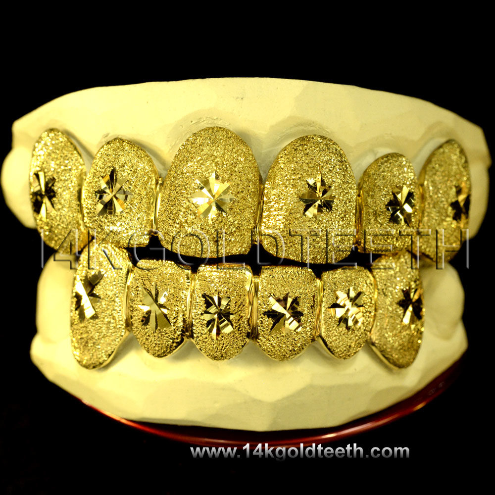 Diamond Dust Yellow Gold Teeth Grillz - DD 90012