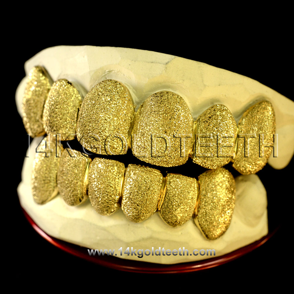 Silver Diamond Dust Grillz with 18k Yellow Gold Plated - SP 103