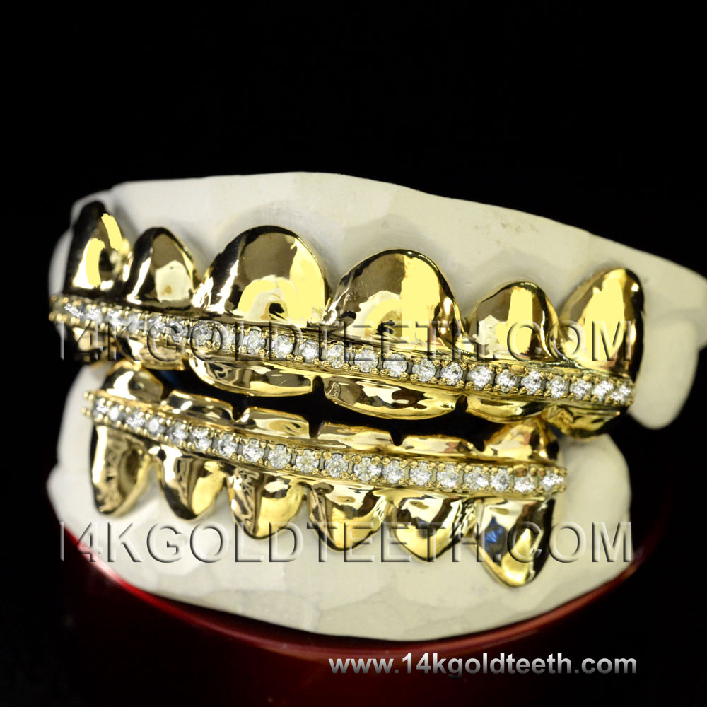 Iced Out  Yellow Gold Teeth Grillz - IC 40003