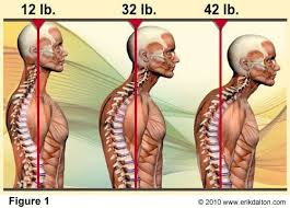 Upper back pain between shoulder blades caused by holding head forward while looking at the computer