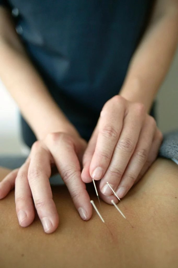 The practice of Acupuncture being shown on a patient