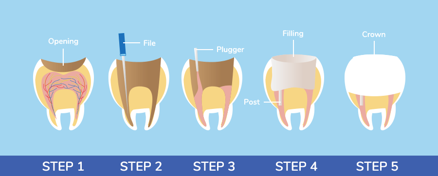 Root Canal Cost Canada 2018 - Root Canal Toothache