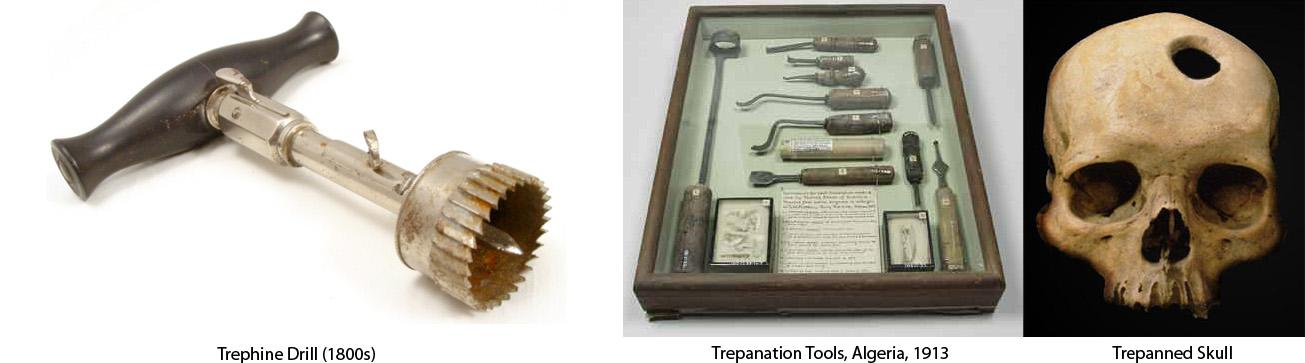 trepanation_tools