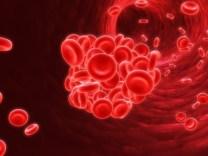 blood clot #2