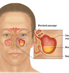 development of sinusitis the sinuses becomes swollen due to inflammation blocking the passage and leading to mucus build up [ 1100 x 786 Pixel ]