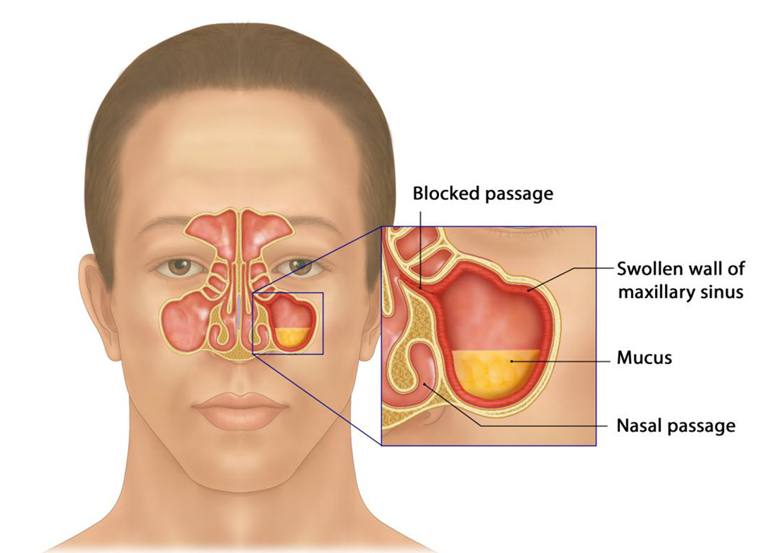 hight resolution of development of sinusitis the sinuses becomes swollen due to inflammation blocking the passage and leading to mucus build up