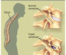 Adequate therapy for ankylosing spondylitis