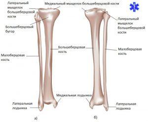 Лечебные меры при переломе большеберцовой кости