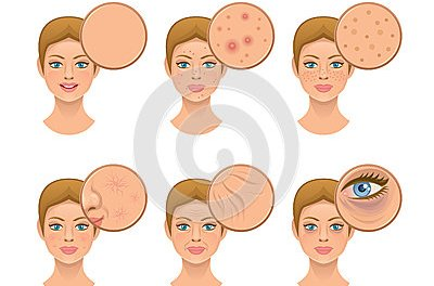 Acne Marks Removal Home Remedies